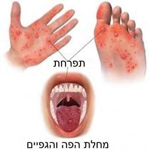 מחלת הפה והגפיים